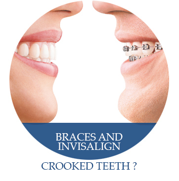 braces_and_invisalign