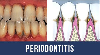 Periodontitis