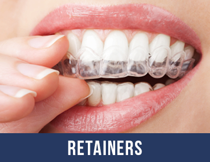 Brace, Retainer, Invisalign Dentist in Angel Islington