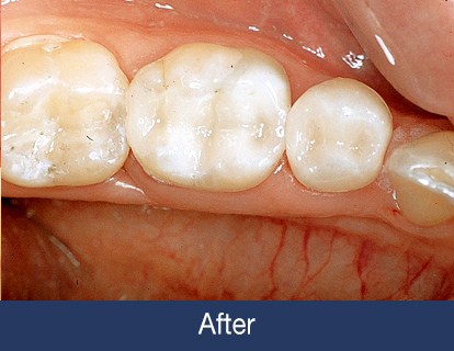 replacing Amalgam filling after
