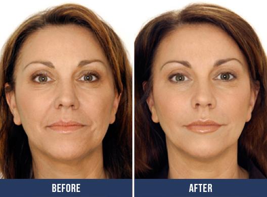 Restoring facial volume
