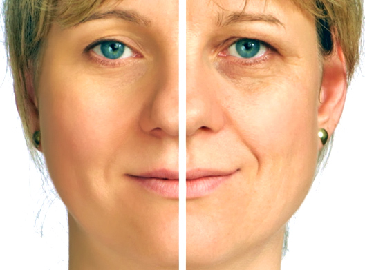 Treatment of nasolabial folds & Smoothing out fine lines