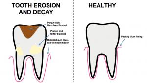 Diagram_of_tooth_erosion