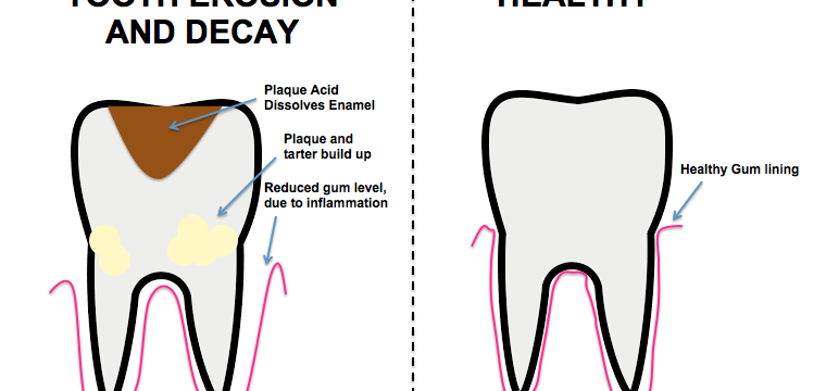 Diagram_of_tooth_erosion