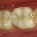 Same day crown with CEREC machine