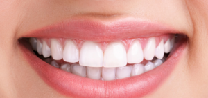 Teeth whitening at Angel Smile Dental Practice