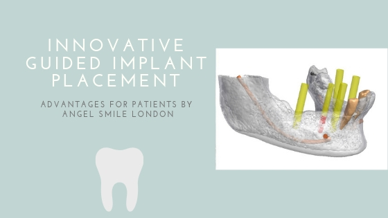 guided-implant-placement