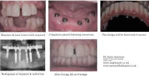 dental implants examples