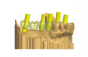 Guided-implant-procedure