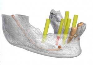 Guided-dental-implant-placement