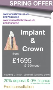 Dental-implant-and-crown-spring-offer