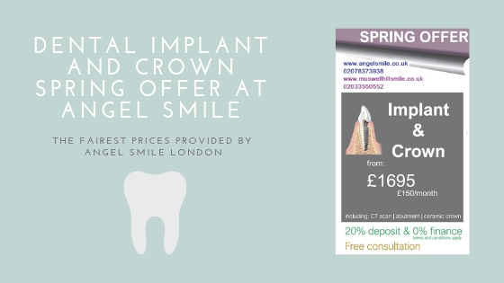 Dental implant and crown spring offer