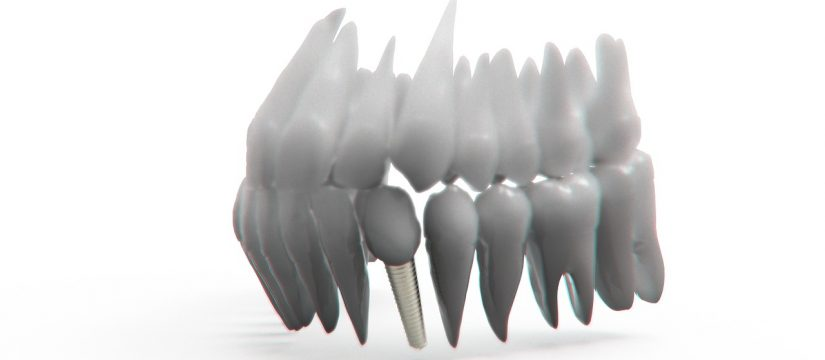 Fast and painfree tooth replacement