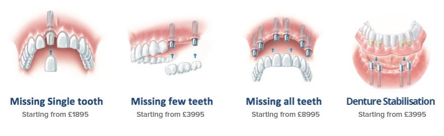 Dental Implants London Teeth Implant Costs Treatments Angel Smile