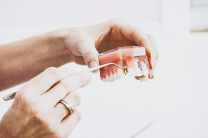 Dental implants for multiple missing teeth